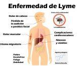Enfermedad de Lyme: qué es, causas, síntomas, tratamiento