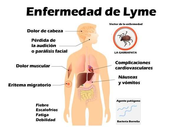 enfermedad de lyme signos y sintomas